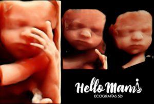 Semana 27 ecografia-5d-hello-mami