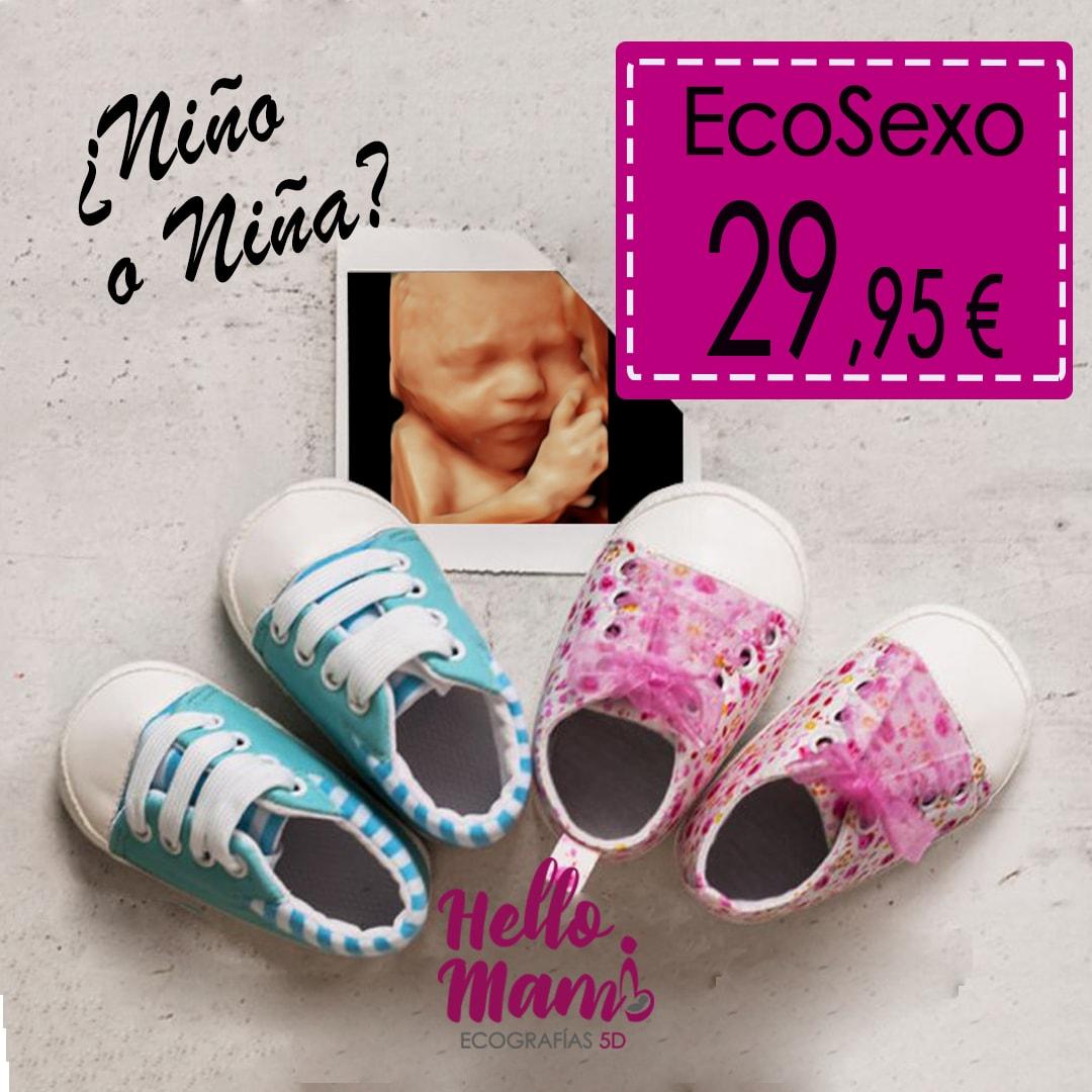 Eco-sexo-del-Bebé-Hello Mami 5D Ecografía 5D - 4D. Ecos 5D en Parla e Illescas, Parla, España